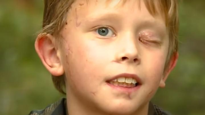 Colorado Boy Recovering After Fighting Off Mountain Lion With Stick Preview Image