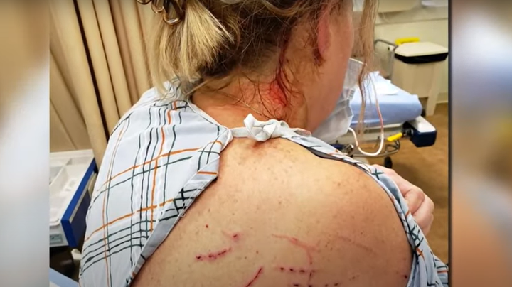 Rabid Bobcat Attacks Connecticut Couple and Their Dog Preview Image