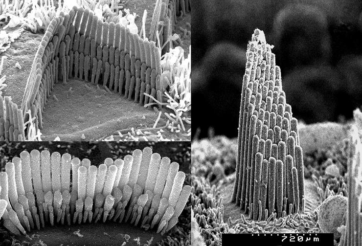 A magnified view of the inner ear hair cells. Image by Dr. David Furness